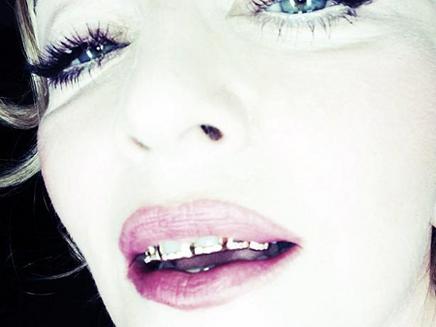 Madonna : un sourire en or !